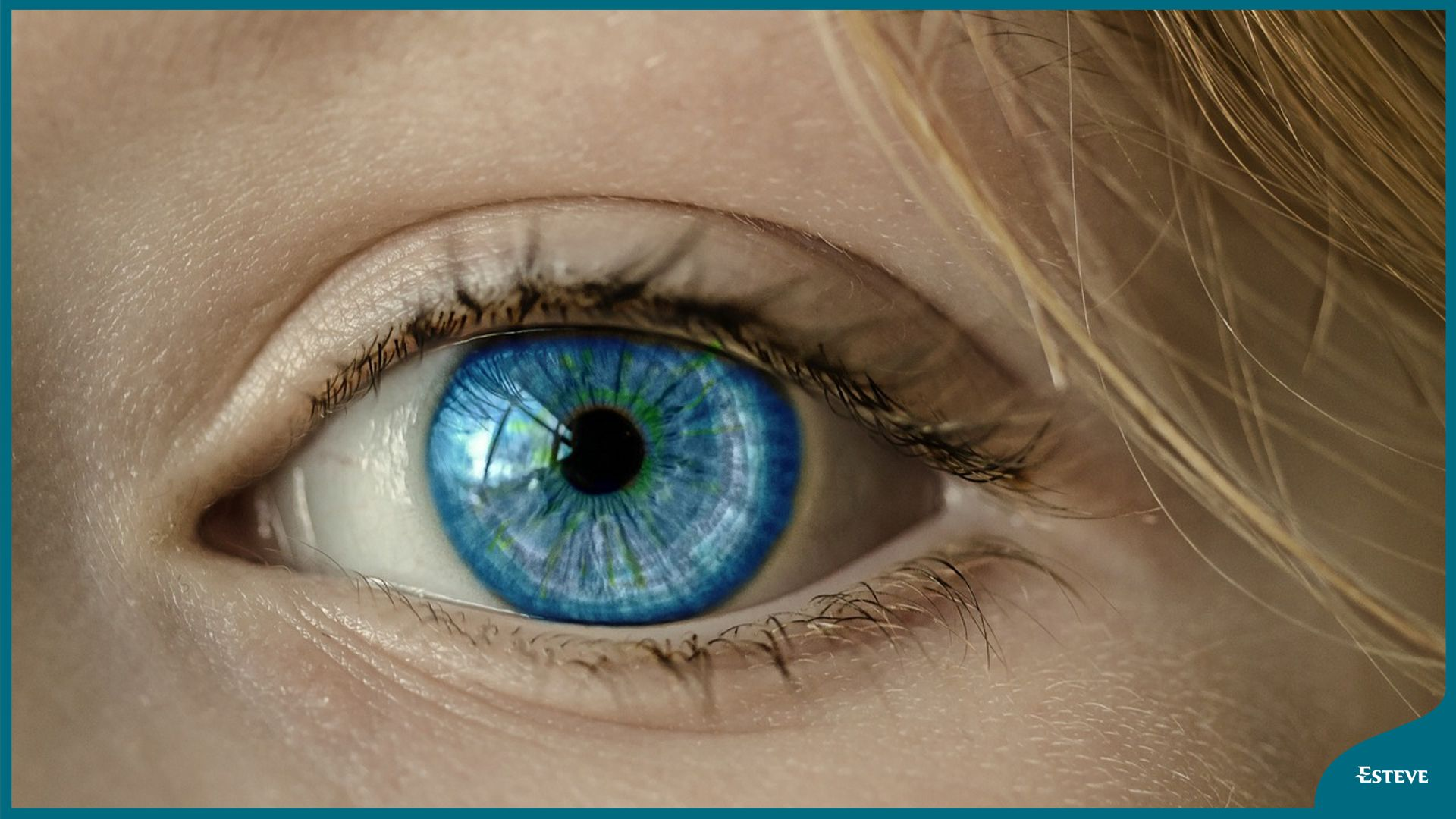 NURSES OFFER CARE AND PREVENTION OF DRY EYE, A CONDITION THAT AFFECTS 60% OF PEOPLE OLDER THAN 45 YEARS